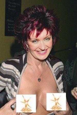 Udane życie Sharon Osbourne dzięki operacji
